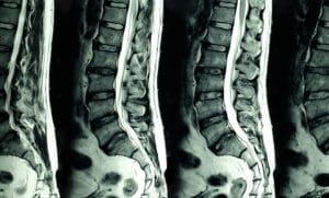 L'imagerie médicale et le mal de dos